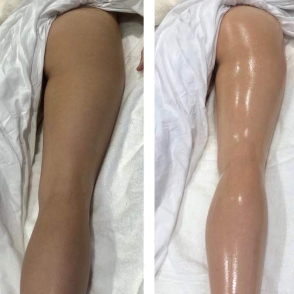 Before and after pictures of Sheila Perez method massage. The leg in the after image appears slimmer.