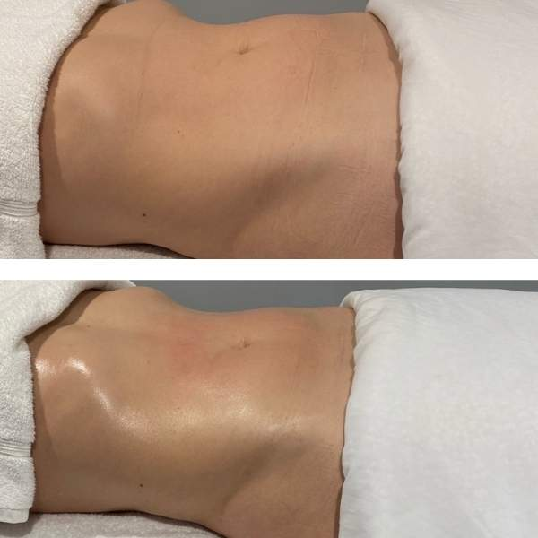 Before and after pictures of Sheila Perez method massage. The torso in the after image appears slimmer.